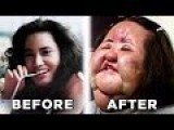 10 More Plastic Surgery Horror Stories