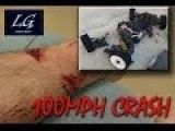 100mph RC Car Crashes Into Guy's Legs Terrible