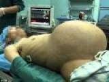 Chinese 33-year-old Man Pregnant Surprise
