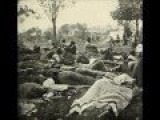 Photographs Of Wounded Union Soldiers In Fredericksburg During The American Civil War 1864