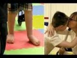Miracle Cerebral Palsy Boy Learns To Walk For First Time