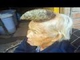 87 Year Old Woman With A HORN Growing Out Of Her Head