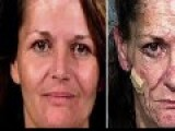 Crystal Meth Before And After And Its Devastating Effects