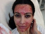 Celebrities Injecting Their Faces With Blood?