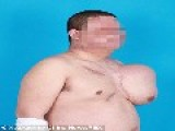 Disfigured Man Is Growing His New Face On His Chest