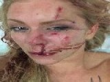 DENMARK: Assaulted On Christmas Eve By Immigrants