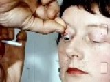 Eye Doctor Finds A Rare TWINKLE In A Woman's Eye!