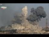 EXCLUSIVE: Aleppo's War Battlefield Russian Report - Heroes Of Al-Kindi Hospital