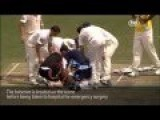 Funny Videos Phil Hughes Rushed To Emergency Surgery After Being Hit On Head