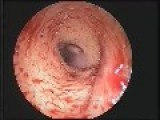 Fruit-fly Larva Living In Womans Ear