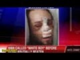 Group Of Blacks Beat A White Man To Near Death During A Hate Crime Attack