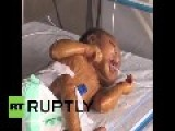 India: Heartbreaking! Baby Born With Rare 'plastic Skin' Condition