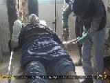 Images IslamicState Bandits Cut Right Hand And Left Foot On Two Bandits &amp Cure Them