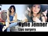 Kylie Jenner Admits Undergoing Lip Surgery