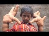 Mystery Condition Gives Indian Boy Gigantic Hands