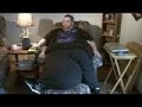 Man With 100-pound Scrotum Has Surgery!