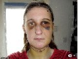Mother Who Was Tortured For Seven Hours And Slashed Across The Throat