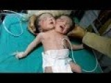 Newborn Baby Girl Born With Two Heads In India 2014 | Conjoined Twins | Siamese
