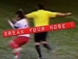 Players Nose Broken By Referee