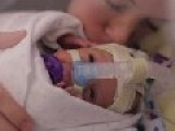 Premature Baby Born 3.5 Months Early Celebrates His First Year
