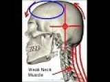 The Human Skull Defect - Every Human Must Know This About The Human Skull