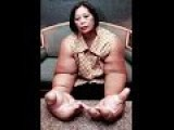 The Woman With The Biggest HANDS In The World