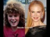 Ugly Duckling Celebs