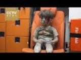 Wounded Child In Syria Parks Global Outrage