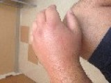 Wasp Sting Balloon Hand