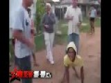 WTF: Woman With A Rare Medial Condition Twerking!