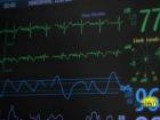 ECG Test May Not Detect Heart Attack Risk