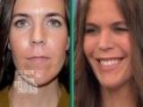 Maxi Lip Procedure Results