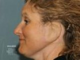 Skin Cancer In The Ear