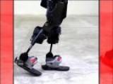 Tamara Walks Again With A Bionic Exoskeleton