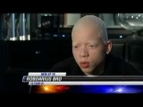 13-Year-Old Albino Fights Bullying With Rap Lyrics