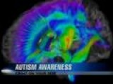 Ask The Doctor: Autism Awareness