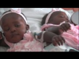 Life Lessons: Conjoined Twins Go Home