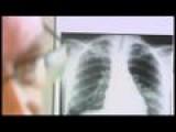 Tuberculosis Drugs In Short Supply