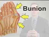 Bunion Treatment - Podiatrist Kansas City, Lee&#039 S Summit, MO And Overland Park, KS