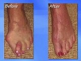 Bunion Surgery - Podiatrist Kansas City, Lee&#039 S Summit, MO & Overland Park, KS