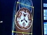 Editor' S Picks Brain Scans Show Signs Of Autism