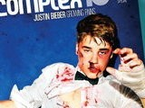 E! News Now Justin Bieber Is Bruised, Bloody