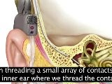 Hearing Aids, Cochlear Implants And Assistive Listening Devices - CAPTIONED