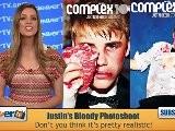 Justin Bieber Gets Beat Up