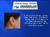 Lyric Hearing Aids Corpus Christi TX