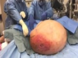 Surgeons Remove 140-pound Tumor From 71-year-old Grandmother