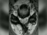 Explaining Cervical Myelopathy