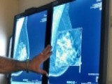 70% Of Early-stage Breast Cancer Cases Could Skip Chemo