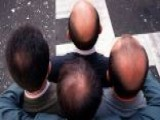 Balding Linked To Heart Disease In Men