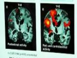Brain Imaging Helps Patients Swallow Post-stroke